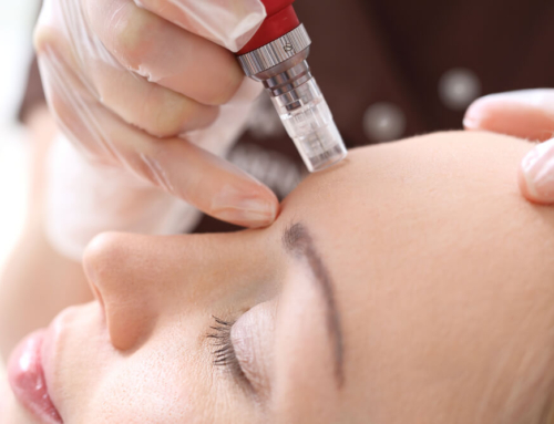 Science Behind Microneedling