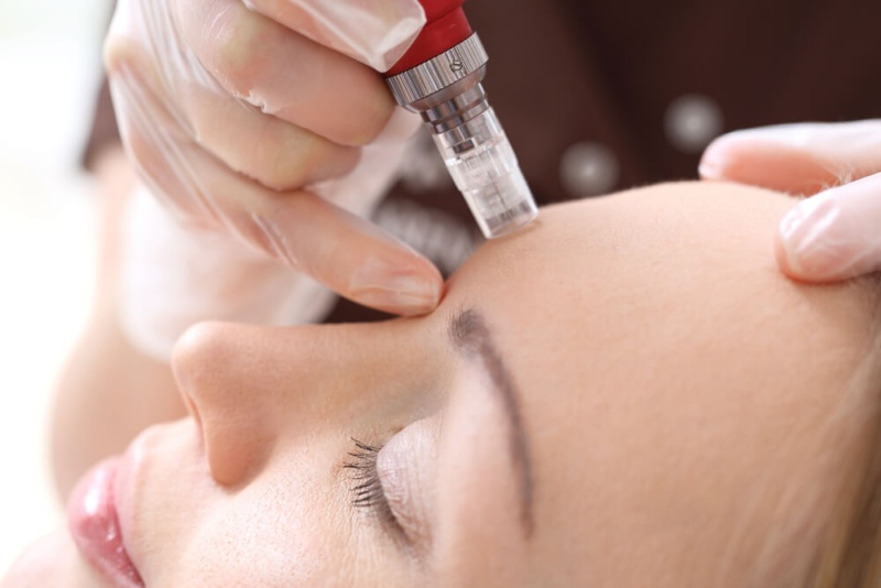 Microneedling Science