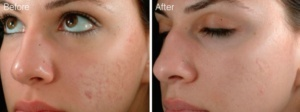 Microneedling Acne Scars