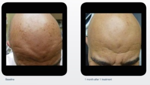 Photo Before After Hyperpigmentation-2