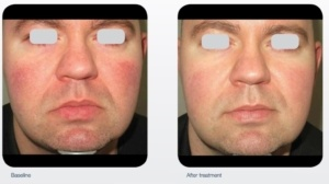 Photo Before After Rosacea