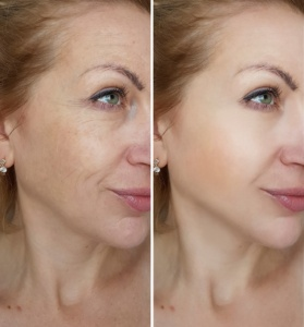 Microneedling + Smooth Aesthetics Signature Facial
